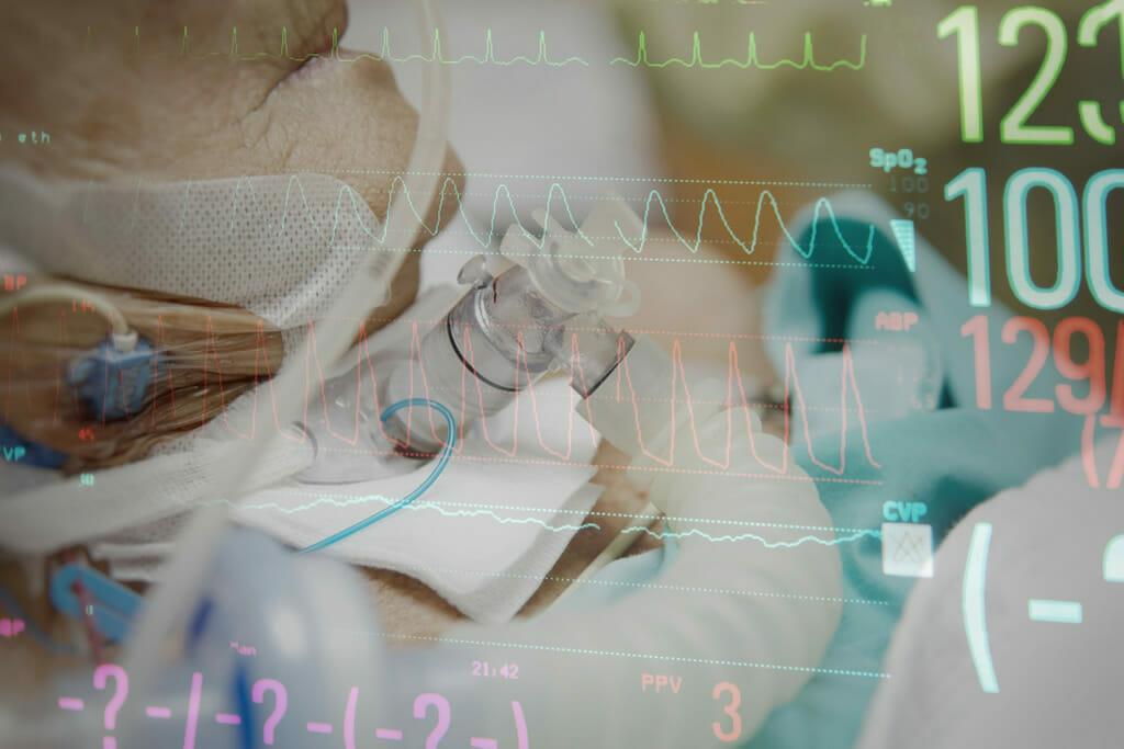 Influencia de la cánula de traqueotomía en el trabajo respiratorio. comparación pre y post decanulación